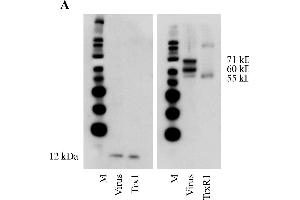 Image no. 1 for anti-Thioredoxin Reductase 1 (TXNRD1) (AA 161-647) antibody (ABIN1999891)
