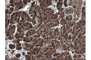 Image no. 5 for anti-Carboxypeptidase A2 (Pancreatic) (CPA2) antibody (ABIN1497598)