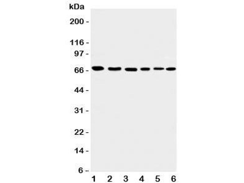Western Blotting (WB) image for anti-Apoptosis-Inducing Factor, Mitochondrion-Associated, 1 (AIFM1) (C-Term) antibody (ABIN3029686)