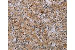 Immunohistochemistry (IHC) image for anti-Apoptosis-Associated tyrosine Kinase (AATK) antibody (ABIN2435072)