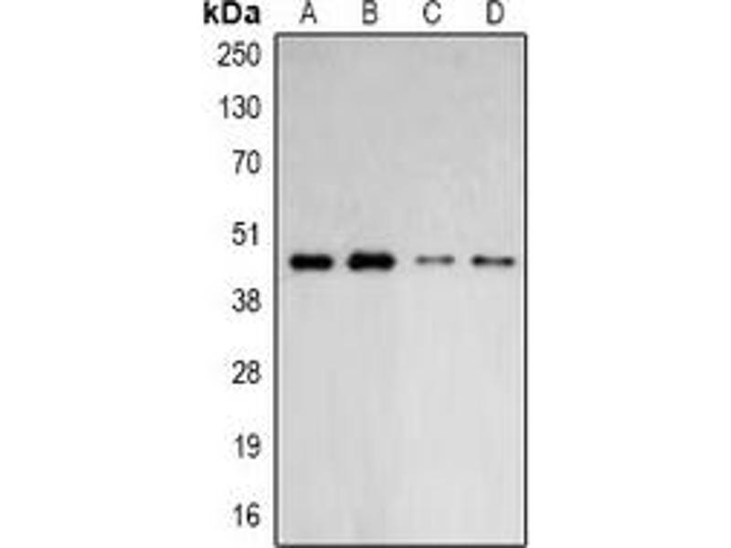 Western Blotting (WB) image for anti-ARPC1B antibody (Actin Related Protein 2/3 Complex, Subunit 1B, 41kDa) (ABIN2966437)