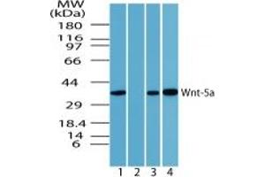 image for anti-Wingless-Type MMTV Integration Site Family, Member 5A (WNT5A) (AA 190-230) antibody (ABIN207746)
