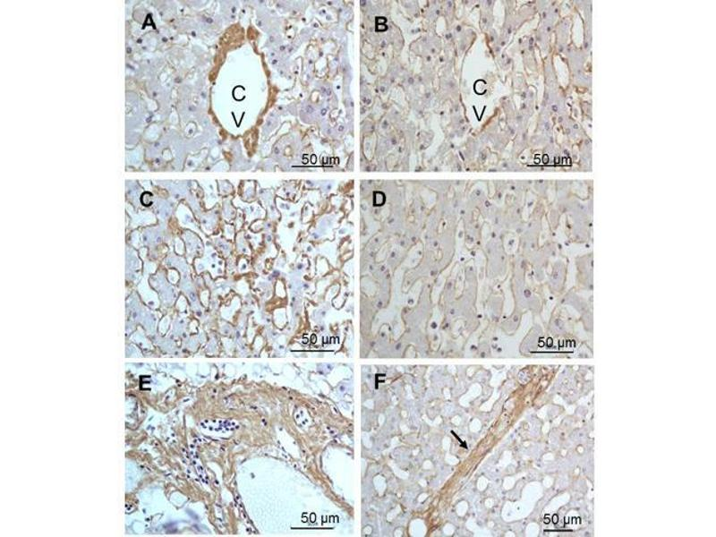Image no. 2 for anti-Collagen, Type III (COL3) antibody (ABIN5596829)