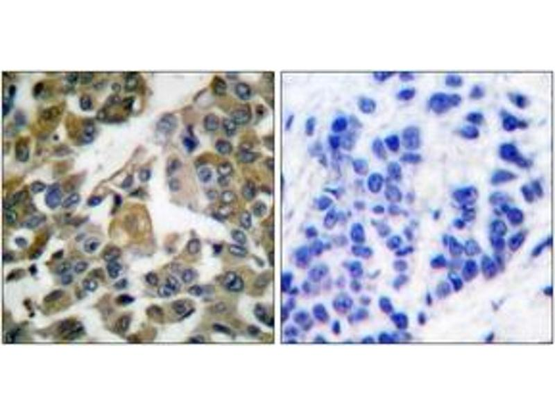 Immunohistochemistry (IHC) image for anti-phospholipase C, gamma 1 (PLCG1) (AA 751-800) antibody (ABIN1532254)