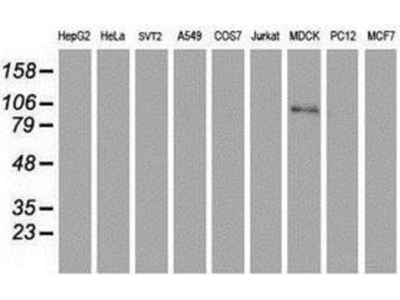 Western Blotting (WB) image for anti-Complement Component 1, R Subcomponent (C1R) antibody (ABIN4264597)