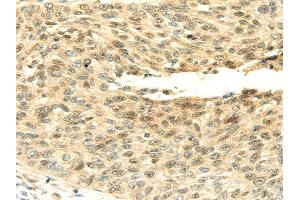 Image no. 1 for anti-SNF2 Histone Linker PHD RING Helicase, E3 Ubiquitin Protein Ligase (SHPRH) antibody (ABIN5962349)