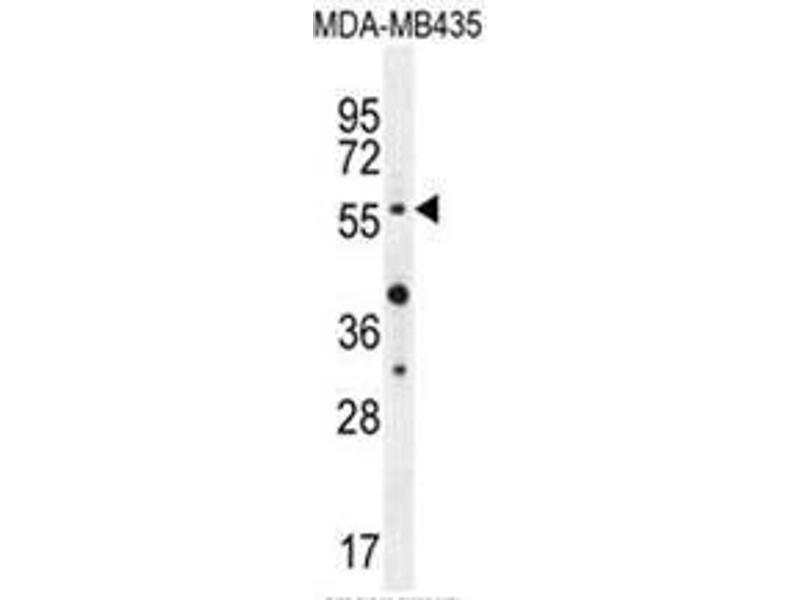 Western Blotting (WB) image for anti-AKT antibody (V-Akt Murine Thymoma Viral Oncogene Homolog 1) (AA 289-318) (ABIN950327)