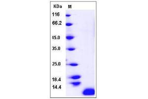 Image no. 1 for Chemokine (C-C Motif) Ligand 17 (CCL17) (AA 1-94) protein (ABIN2215224)