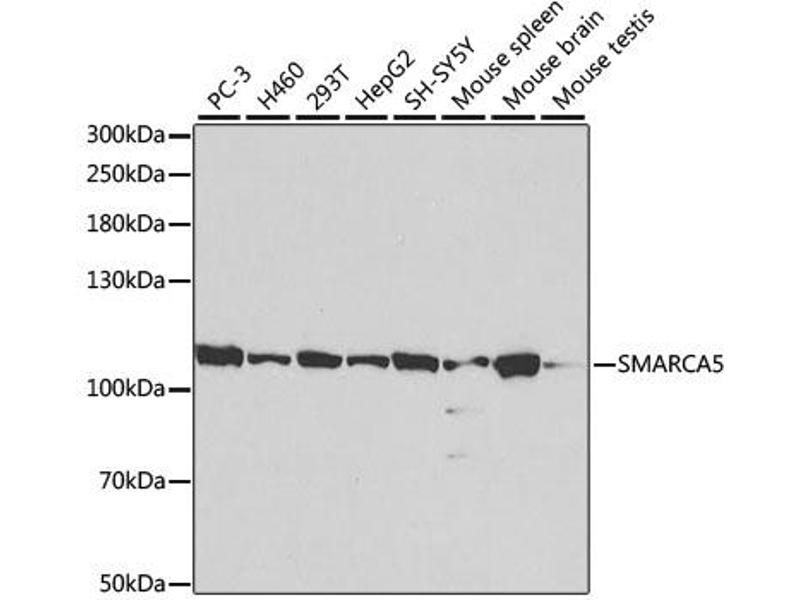 Image no. 1 for anti-SWI/SNF Related, Matrix Associated, Actin Dependent Regulator of Chromatin, Subfamily A, Member 5 (SMARCA5) antibody (ABIN6569037)