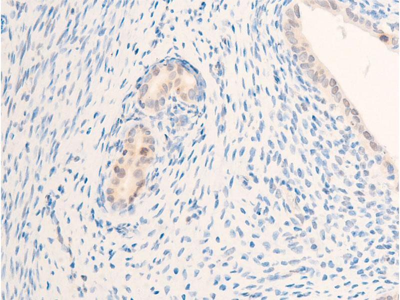 Immunohistochemistry (IHC) image for anti-V-Erb-B2 erythroblastic Leukemia Viral Oncogene Homolog 2, Neuro/glioblastoma Derived Oncogene Homolog (Avian) (ERBB2) (pTyr877) antibody (ABIN6256054)