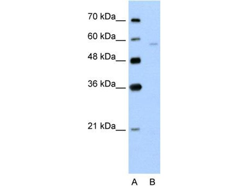 Western Blotting (WB) image for anti-Solute Carrier Family 22 (Organic Cation Transporter), Member 7 (SLC22A7) (N-Term) antibody (ABIN310317)