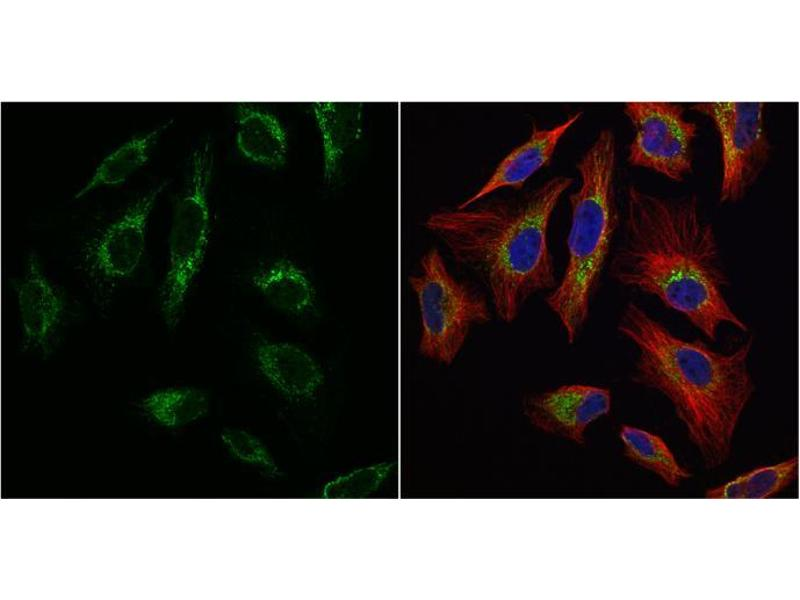 Immunofluorescence (IF) image for anti-Transcription Factor A, Mitochondrial (TFAM) (Center) antibody (ABIN2855585)