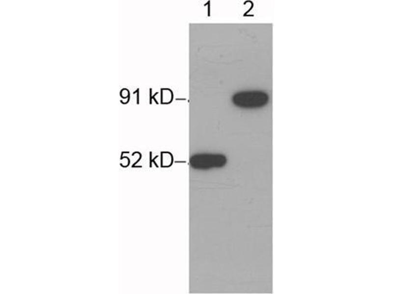 Western Blotting (WB) image for anti-His Tag antibody (ABIN1573881)