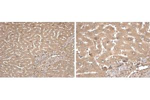 Immunohistochemistry (Formalin-fixed Paraffin-embedded Sections) (IHC (fp)) image for anti-Fetuin A antibody (alpha-2-HS-Glycoprotein) (ABIN108516)