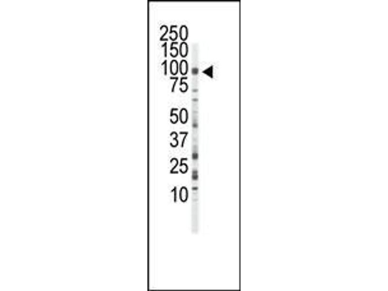 Western Blotting (WB) image for anti-FGFR3 antibody (Fibroblast Growth Factor Receptor 3) (AA 776-806) (ABIN391969)