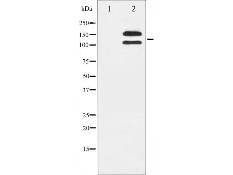 Western Blotting (WB) image for anti-Mast/stem Cell Growth Factor Receptor (KIT) (pTyr721) antibody (ABIN6256004)