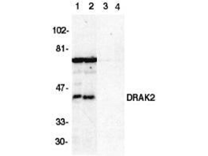 Western Blotting (WB) image for anti-serine/threonine Kinase 17b (STK17B) (C-Term) antibody (ABIN499770)