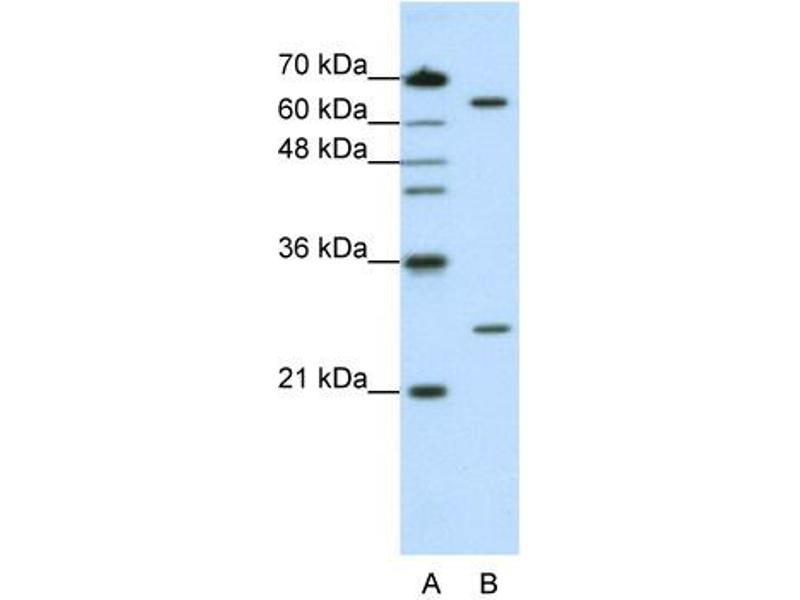 Western Blotting (WB) image for anti-Nudix (Nucleoside Diphosphate Linked Moiety X)-Type Motif 21 (NUDT21) (N-Term) antibody (ABIN184018)