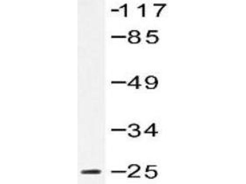 Western Blotting (WB) image for anti-Ephrin A5 antibody (EFNA5) (Pro63) (ABIN446921)