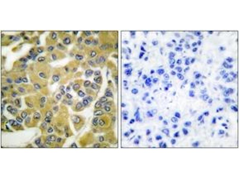 Immunohistochemistry (IHC) image for anti-IKBKB antibody (Inhibitor of kappa Light Polypeptide Gene Enhancer in B-Cells, Kinase beta) (pTyr188) (ABIN1531286)