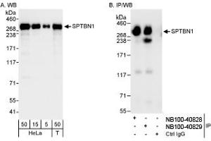 Western Blotting (WB) image for anti-Spectrin Beta, Non-Erythrocytic 1 (SPTBN1) (AA 2150-2200) antibody (ABIN251513)