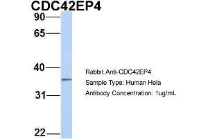 Image no. 1 for anti-CDC42 Effector Protein (Rho GTPase Binding) 4 (CDC42EP4) (N-Term) antibody (ABIN2785914)