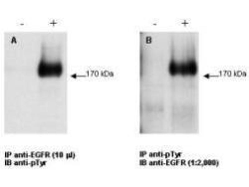 Image no. 1 for anti-Epidermal Growth Factor Receptor (EGFR) antibody (ABIN98862)