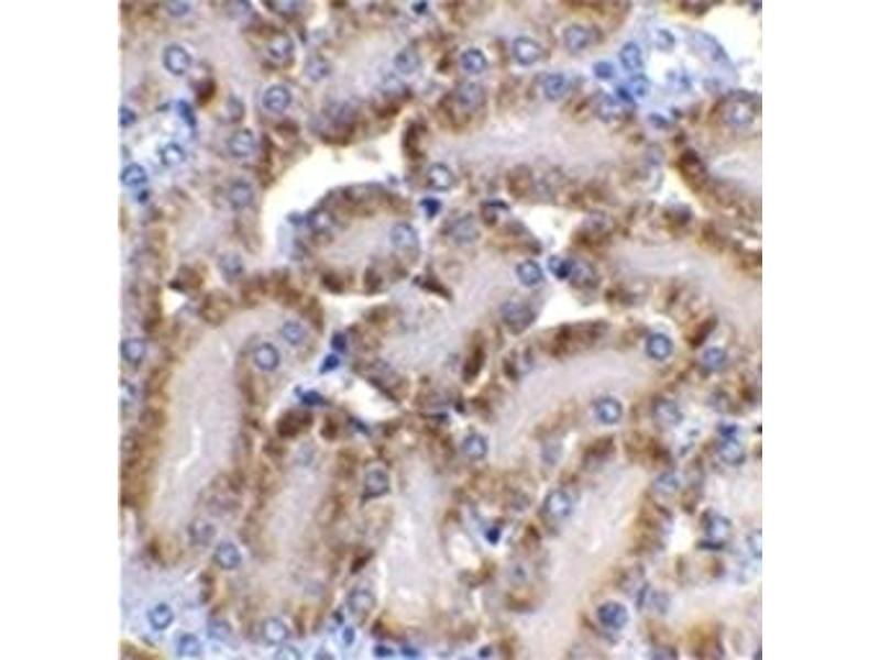 image for anti-DNA Fragmentation Factor, 40kDa, beta Polypeptide (Caspase-Activated DNase) (DFFB) (AA 205-222) antibody (ABIN319000)