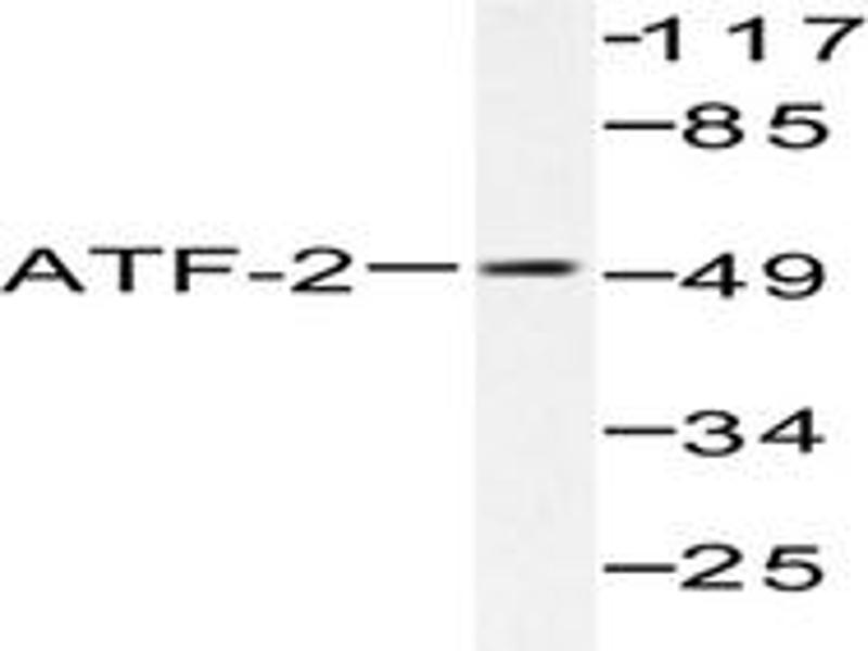 image for anti-ATF2 antibody (Activating Transcription Factor 2) (ABIN265318)