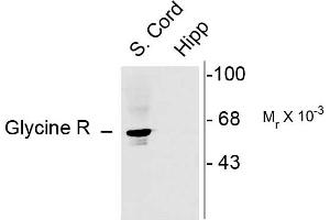 Image no. 1 for anti-Glycine Receptor, alpha 1 (GLRA1) (N-Term) antibody (ABIN361432)