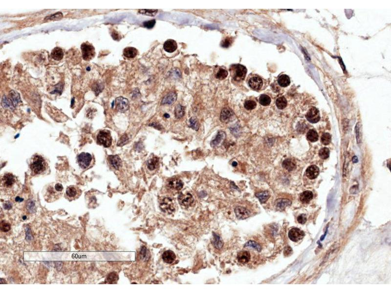 Immunohistochemistry (Paraffin-embedded Sections) (IHC (p)) image for anti-Rac GTPase Activating Protein 1 (RACGAP1) (C-Term) antibody (ABIN2564849)