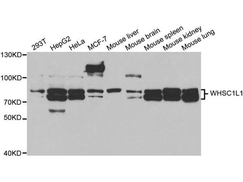 Image no. 1 for anti-Wolf-Hirschhorn Syndrome Candidate 1-Like 1 (WHSC1L1) antibody (ABIN2560776)