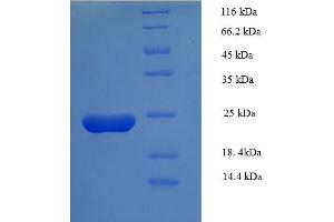 Image no. 1 for Serum Amyloid A (SAA) (AA 1-90), (full length) protein (His tag,B2M) (ABIN5710306)
