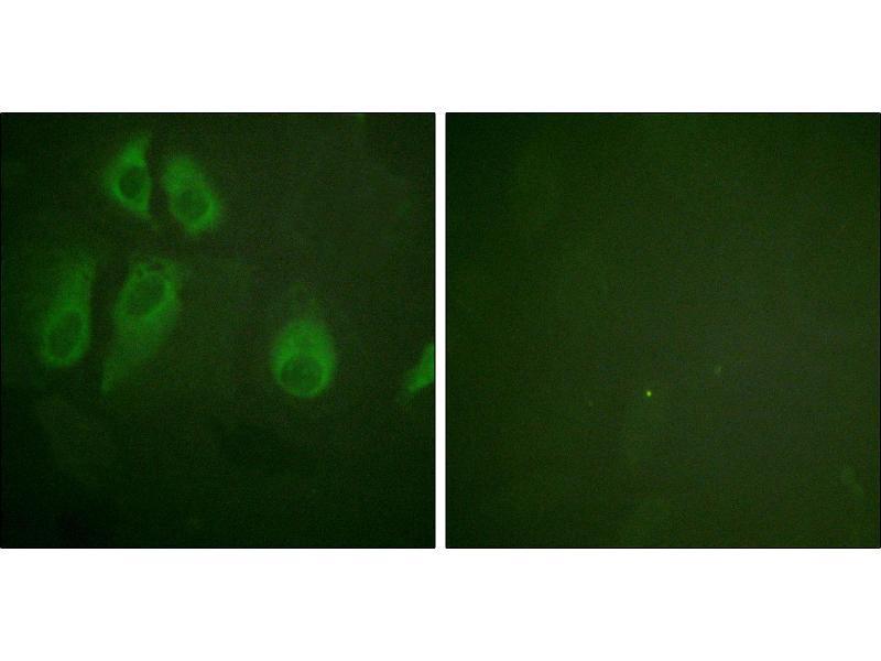 Immunofluorescence (IF) image for anti-CD25 antibody (Interleukin 2 Receptor, alpha) (Ser268) (ABIN2490712)