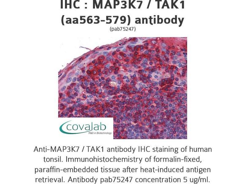 image for anti-Mitogen-Activated Protein Kinase Kinase Kinase 7 (MAP3K7) (AA 563-579) antibody (ABIN1736722)