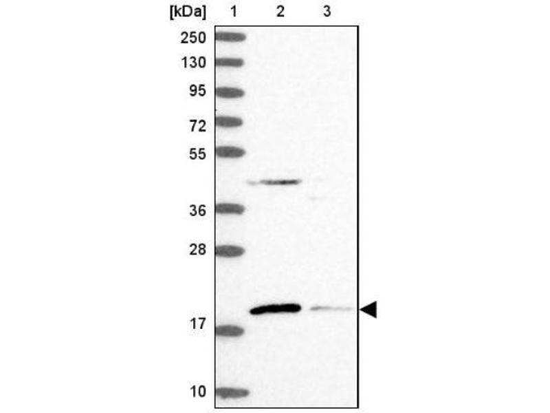 Western Blotting (WB) image for anti-RMI2, RecQ Mediated Genome Instability 2, Homolog (S. Cerevisiae) (RMI2) antibody (ABIN4350632)