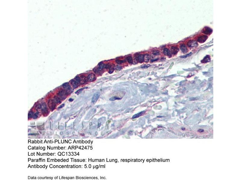 Immunohistochemistry (IHC) image for anti-BPI Fold Containing Family A, Member 1 (BPIFA1) (Middle Region) antibody (ABIN310347)