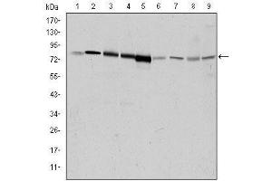 Western Blotting (WB) image for anti-Adrenergic, Beta, Receptor Kinase 1 (ADRBK1) antibody (ABIN4880192)