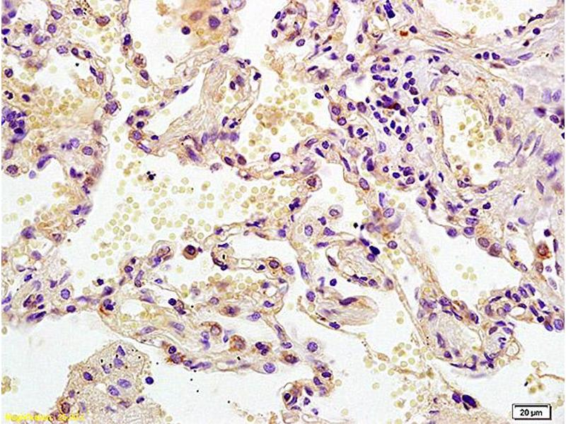 Immunohistochemistry (IHC) image for anti-Mitogen-Activated Protein Kinase Kinase 2 (MAP2K2) (AA 1-50) antibody (ABIN726500)