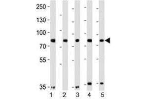 Image no. 4 for anti-Insulin Receptor-Related Receptor (INSRR) (AA 668-702) antibody (ABIN3029735)