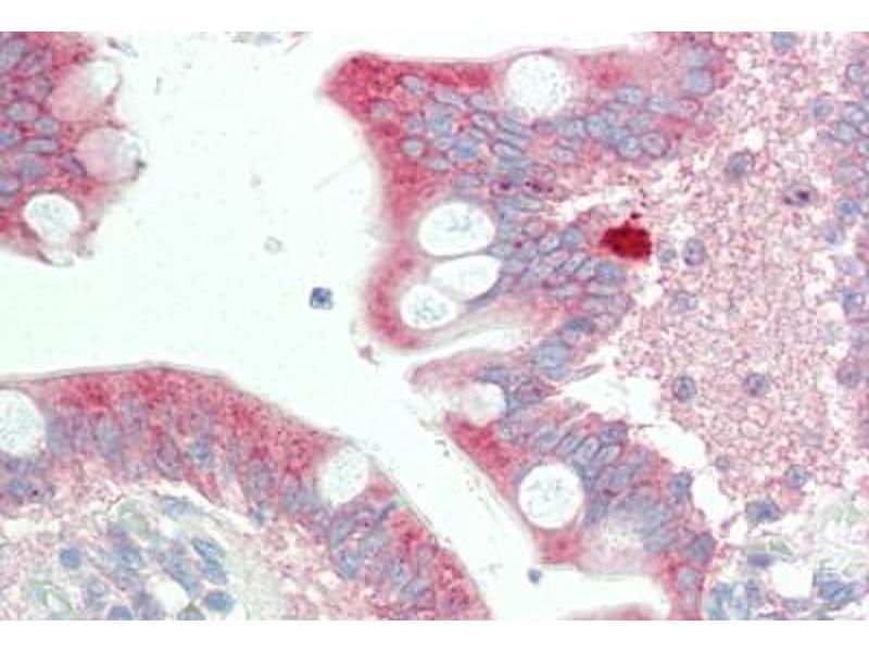 Immunohistochemistry (Paraffin-embedded Sections) (IHC (p)) image for anti-Stromal Interaction Molecule 2 (Stim2) (Internal Region) antibody (ABIN461903)