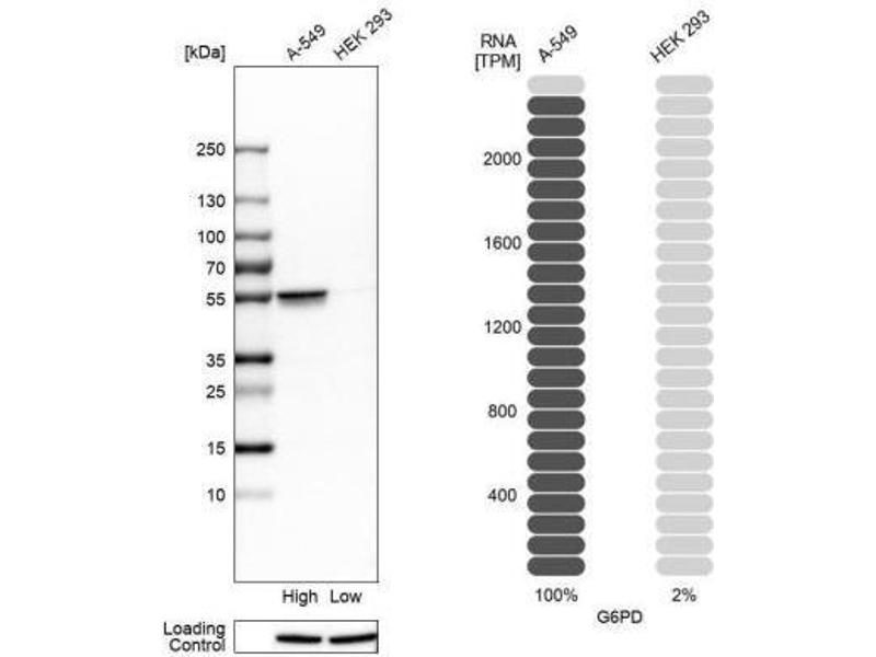 Western Blotting (WB) image for anti-Glucose-6-Phosphate Dehydrogenase (G6PD) antibody (ABIN4314533)