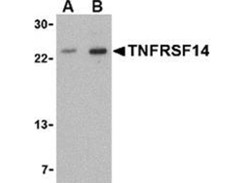 Western Blotting (WB) image for anti-Tumor Necrosis Factor Receptor Superfamily, Member 14 (TNFRSF14) (N-Term) antibody (ABIN501000)