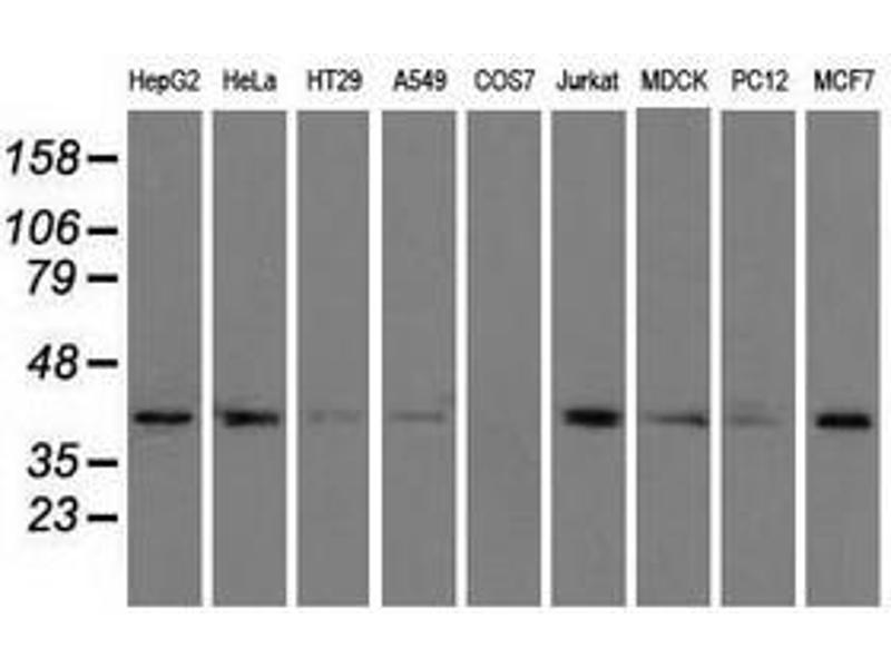 Image no. 7 for anti-Acetyl-CoA Acetyltransferase 2 (ACAT2) antibody (ABIN1496403)
