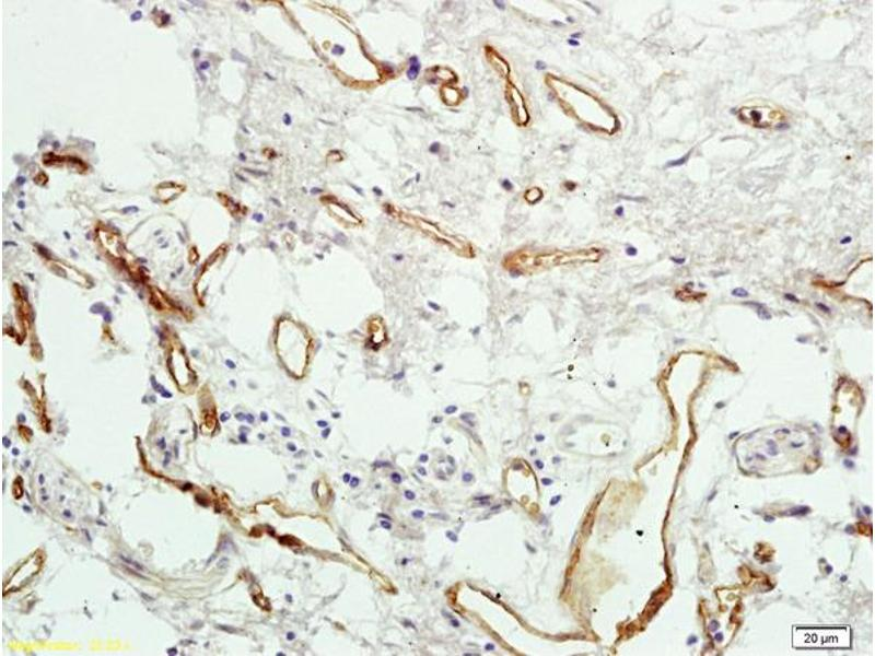 Immunohistochemistry (IHC) image for anti-Coagulation Factor II (Thrombin) Receptor-Like 3 (F2RL3) (AA 320-343) antibody (ABIN673224)