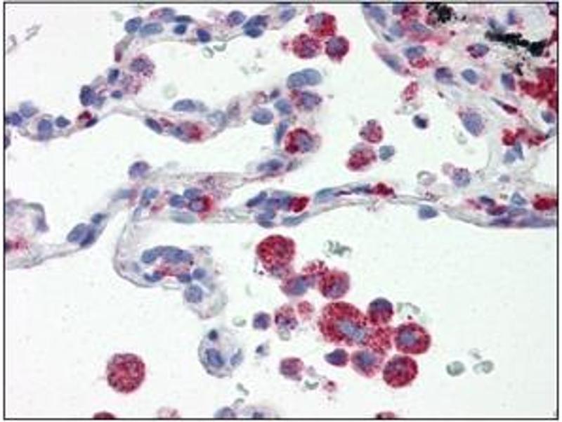 Immunohistochemistry (IHC) image for anti-Interferon Regulatory Factor 7 (IRF7) (AA 1-150), (N-Term) antibody (ABIN263914)