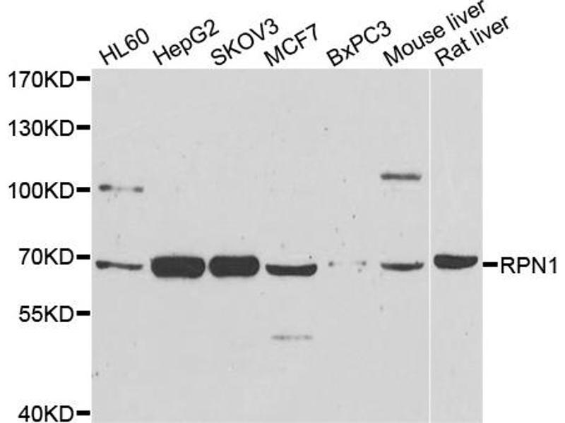 Image no. 1 for anti-Ribophorin 1 (RPN1) antibody (ABIN6567516)