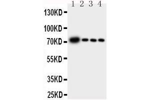 Image no. 2 for anti-Glutamate-Cysteine Ligase, Catalytic Subunit (GCLC) (AA 7-24), (N-Term) antibody (ABIN3044416)