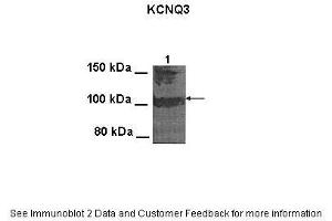 Image no. 2 for anti-Potassium Voltage-Gated Channel, KQT-Like Subfamily, Member 3 (KCNQ3) (Middle Region) antibody (ABIN2776162)