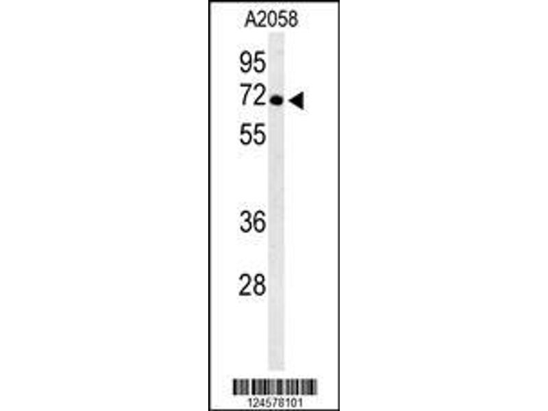Western Blotting (WB) image for anti-ATPase, H+ Transporting, Lysosomal 70kDa, V1 Subunit A (ATP6V1A) (AA 441-468), (Center) antibody (ABIN653735)